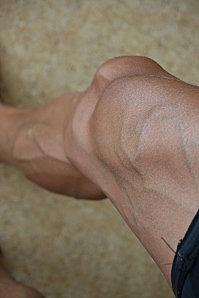 grosses veines apparentes jambes
