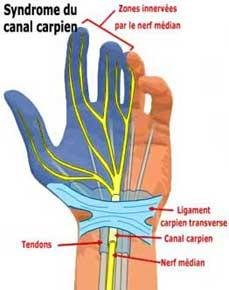 canal carpien ou tunnel carpien et étirement du poignet
