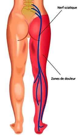 douleur musculaire fessier