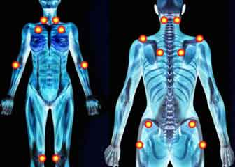 fibromyalgie 18 point