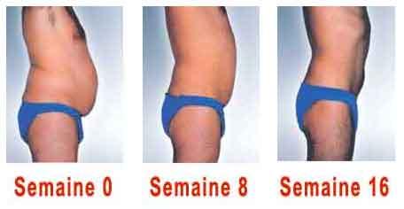 comment maigrir des hanches femme