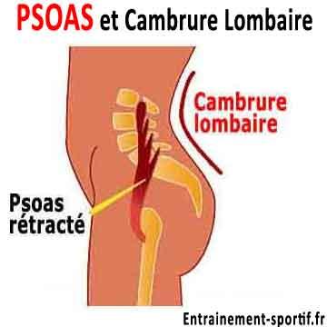 un psoas raccourci est la cause principale de la cambrure lombaire
